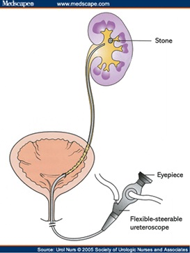 Dr Eric Chung Stone Treatment